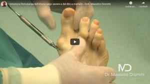 Tecnica Percutanea di Ultima Generazione - Dr Massimo Drommi