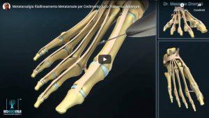 Metatarsalgia riallineamento arco trasverso - grafica 3D
