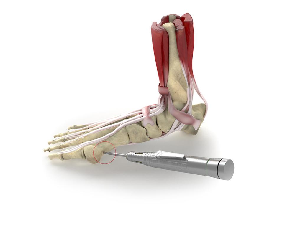 sezione caviglia e piede con descrizione visiva per la chirurgia percutanea alluce valgo
