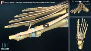 Chirurgia Percutanea Stabilizzata