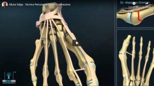 Tecnica Percutanea di Ultima Generazione - descrizione video in 3D Dr Massimo Drommi